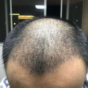 心尚温-植发术后第24天图片