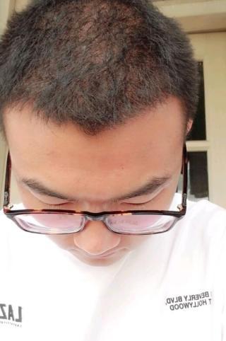 囍新还验旧-植发术后第6月图片