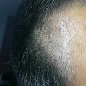 信命不认命-植发术后第2月图片
