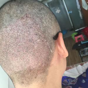 假装狠辛福-植发术后第3天图片