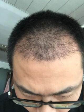 假装狠辛福-植发术后第1月图片