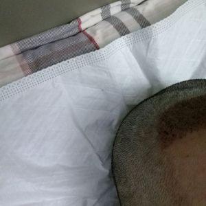 悲与喜-植发术后第3天图片