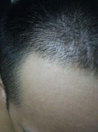 喜乐果-植发术后第4月图片