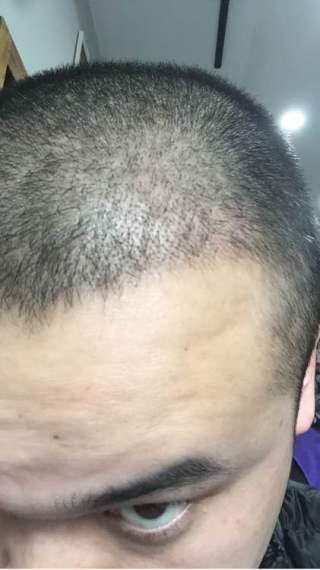 喜爱纠缠-植发术后第16天图片