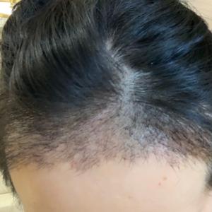 我不姓胡-植发术后第20天图片