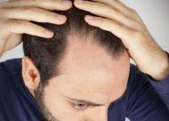 掉头发很厉害的原因有哪些?四大预防掉发的方法