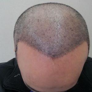 喜欢我就抢-植发术后第7天图片