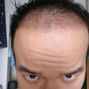 喜欢我就抢-植发术后第36天图片