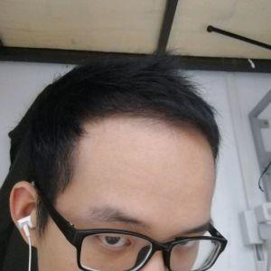 喜欢我就抢-植发术后第6月图片