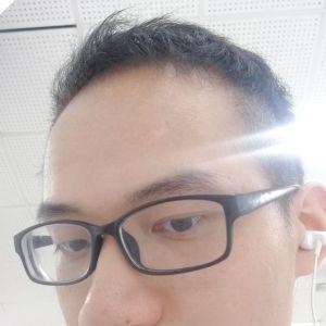 喜欢我就抢-植发术后第7月图片