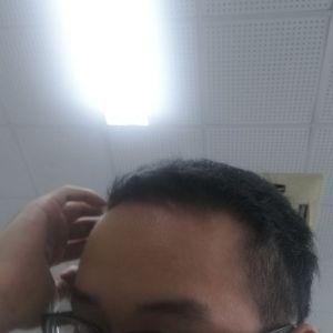 喜欢我就抢-植发术后第8月图片