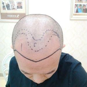蜜兮-植发术后当天图片