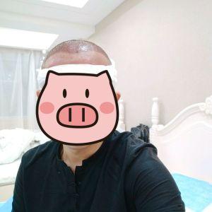 蜜兮-植发术后第1天图片