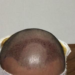 不及他-植发术后当天图片