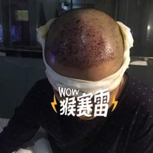 头发盘起时-植发术后第1天图片