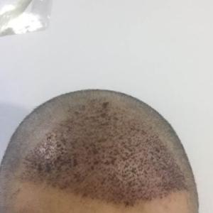 头发盘起时-植发术后第2天图片