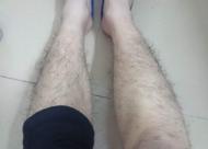 腿毛种植怎么样 如何选择腿毛种植医院