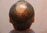 秃顶植发的毛囊成活率高吗 秃顶植发有什么条件