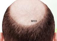 秃顶能植发吗 如何提升头顶头发的密度
