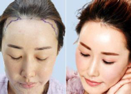 发际线调整原理是什么 植发后有后遗症吗