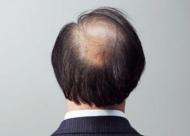 头发稀疏是什么原因导致的 头顶加密术有没有风险