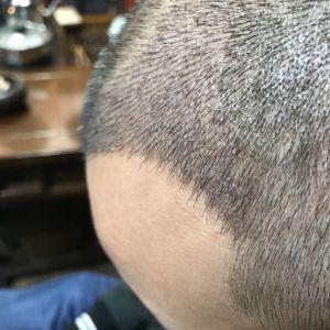 天性凉薄-植发术后第8天图片