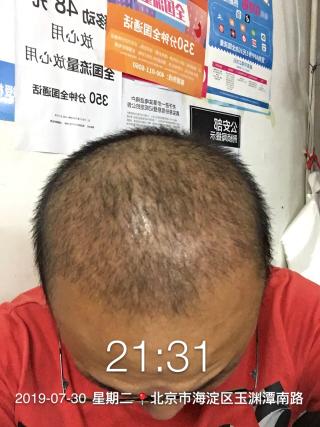 是一个故事-植发术后第19天图片