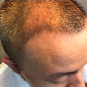 天性凉薄-植发术后第122天图片