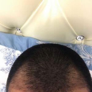 最后一颗星-植发术后第20天图片