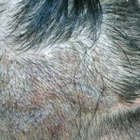 疤痕植发用户图片