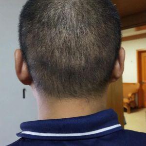 繁星流动-植发术后第20天图片