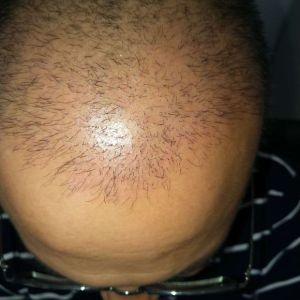繁星流动-植发术后第38天图片