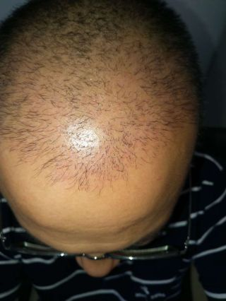 繁星流动-植发术后第1月图片