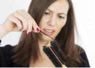 掉头发严重应该挂什么科 掉头发需要检查什么