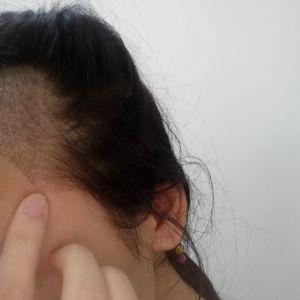 假仙女真汉子-植发术后第7天图片