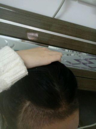 假仙女真汉子-植发术后第14天图片