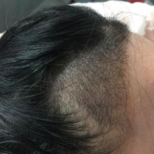 假仙女真汉子-植发术后第18天图片