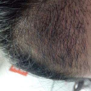 假仙女真汉子-植发术后第20天图片
