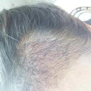 假仙女真汉子-植发术后第24天图片