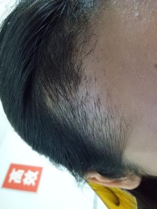 假仙女真汉子-植发术后第48天图片