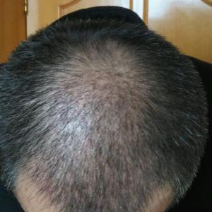 安稳先生-植发术后第30天图片