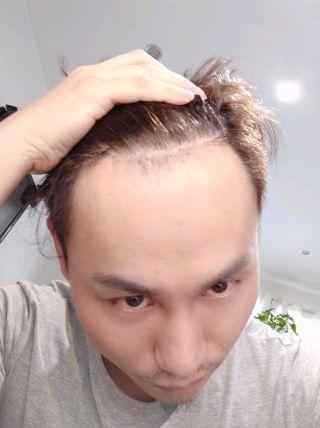 缺爱先生丶-植发术后第343天图片