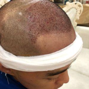 情话先生-植发术后当天图片