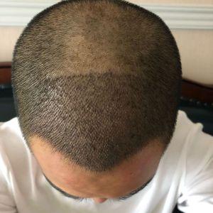 情话先生-植发术后第6天图片