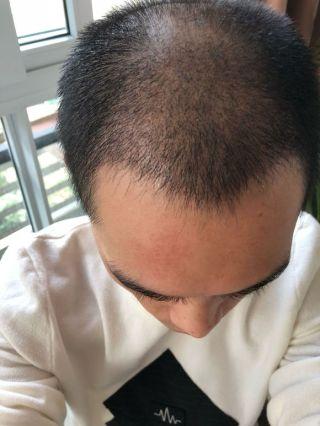 情话先生-植发术后第27天图片