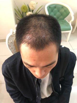 情话先生-植发术后第51天图片