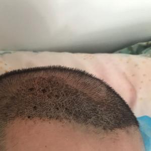 浪人-植发术后第5天图片