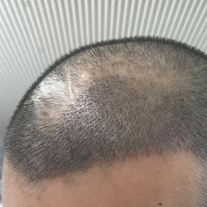 浪人-植发术后第6天图片