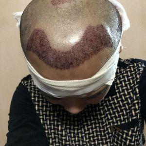 憨豆先生-植发术后当天图片