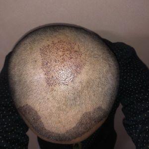 憨豆先生-植发术后第3天图片